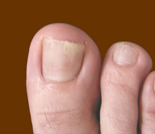 Причина отслоения ногтя на большом пальце ноги лечение